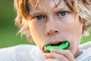 DeCare Dental - Mouth Guard