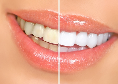 DeCare Dental - Tooth Whitening