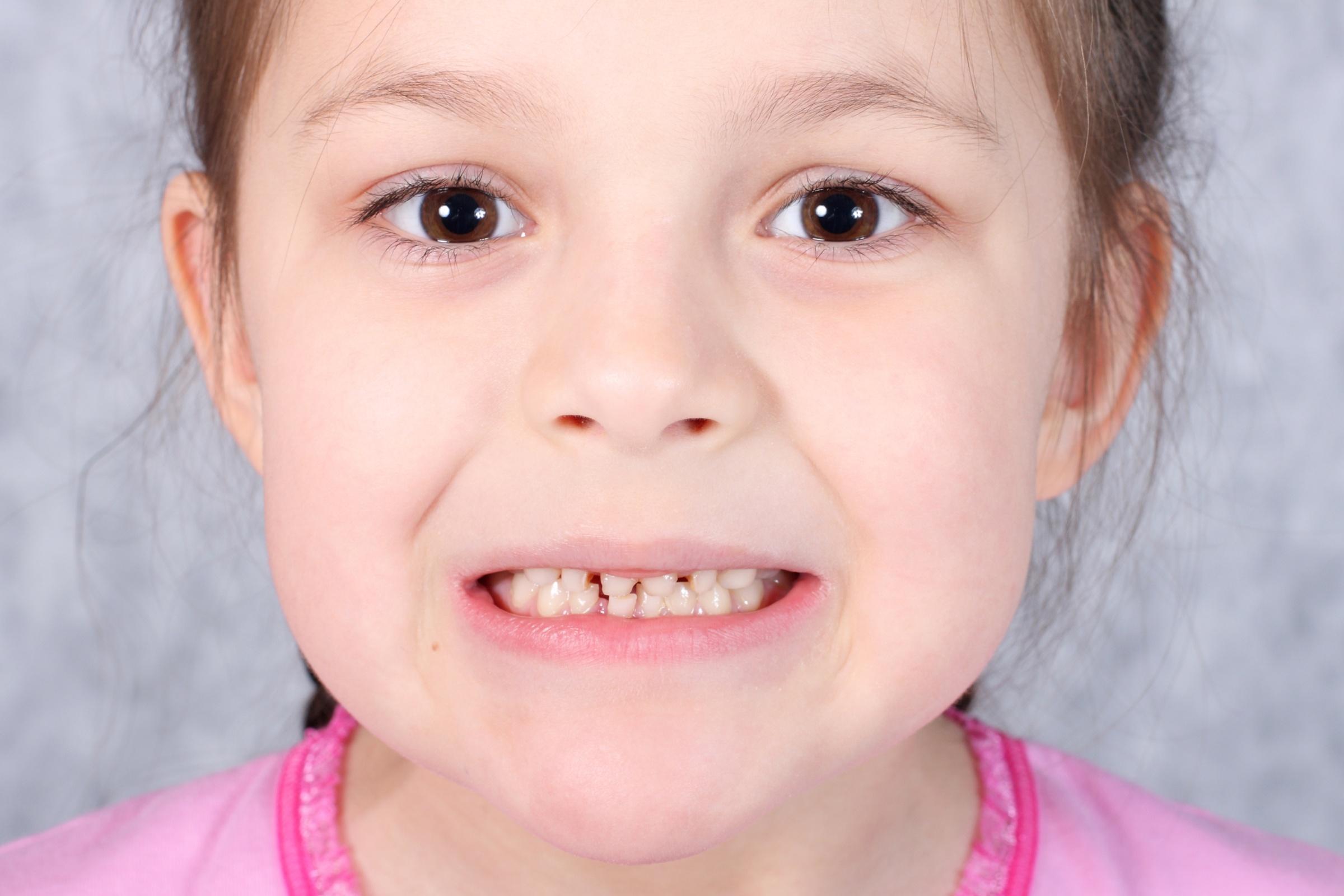 DeCare Dental - grinding teeth