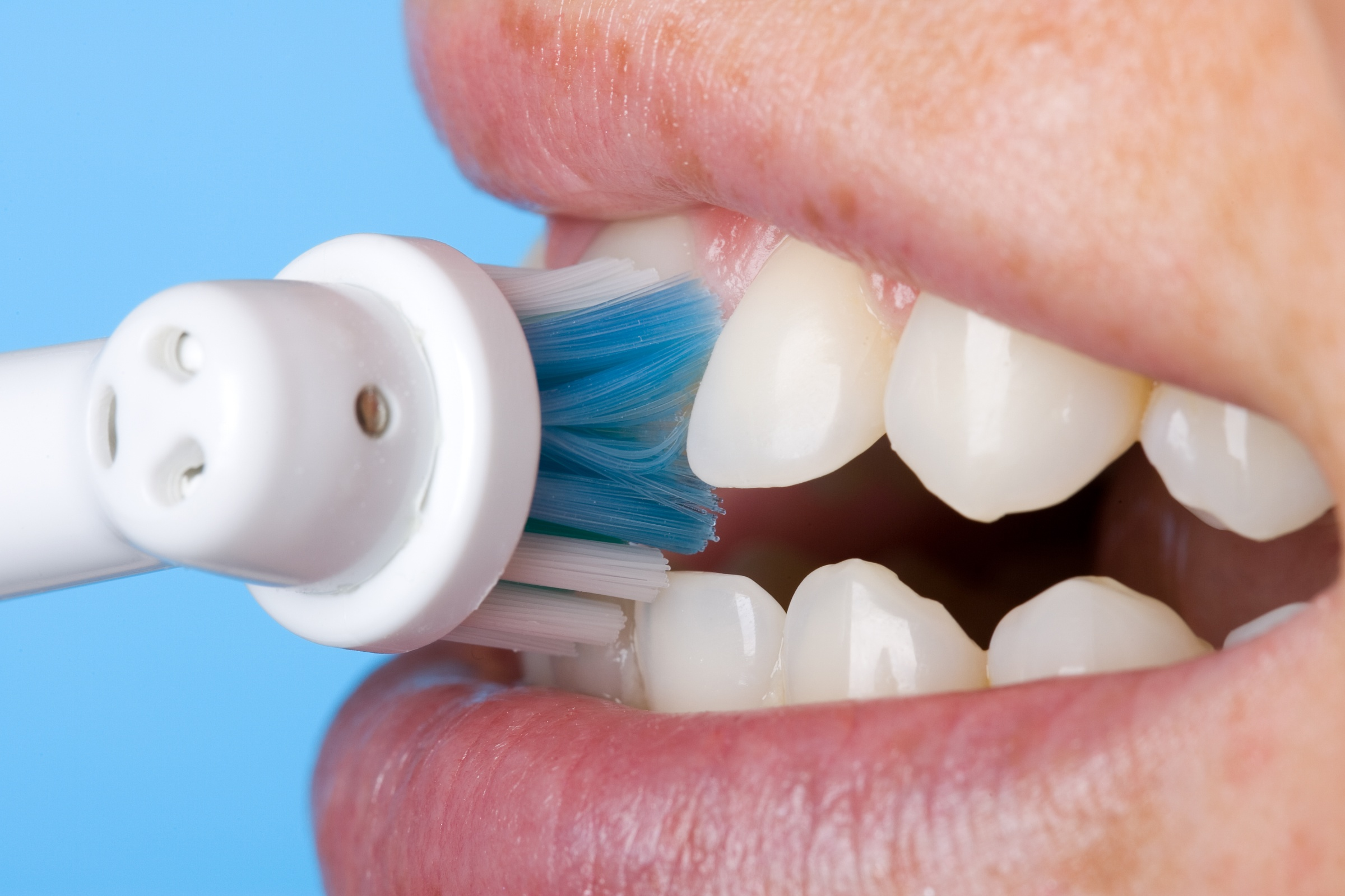 DeCare Dental - brushing teeth