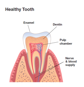 Root canal one tooth