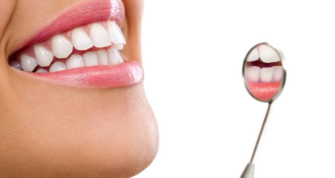 Adult Teeth Explained